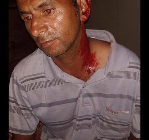 काँग्रेस नेता माथिको आक्रमण आपत्तीजनक ः नेविसंघ