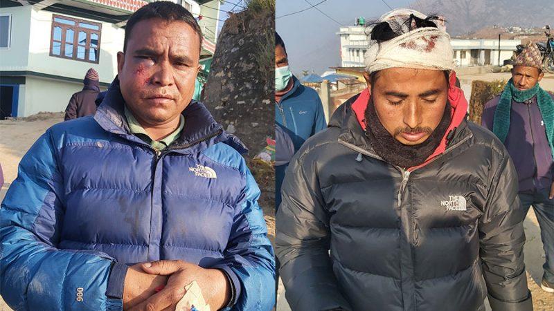 रुकुम घटना ः घाईतेलाई थप उपचारका लागि कोहलपुर पठाइयो काँग्रेस द्धारा घटनाको भत्सर्न